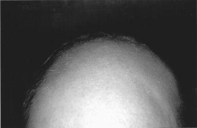 Hypnose bij alopecia areate oftewel haaruitval